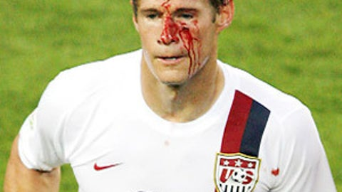 McBride's bloody face