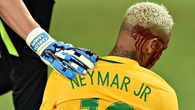Neymar ended up with a bloody head in Brazil's World Cup qualifying win