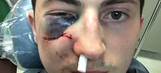 Zach Werenski will miss the rest of the season after taking a puck to the face
