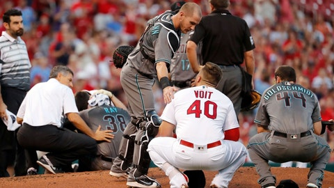 Robbie Ray, Diamondbacks pitcher, hit in head by 108 miles per hour line drive