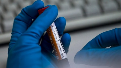 FILE - In this May 24, 2016 file photo an employee of the Russia's national drug-testing laboratory holds a vial in Moscow, Russia. FIFA has intensified the investigation into doping in Russian soccer, disclosing on Monday, Jan. 15, 2018 it has finally sought details from the chemist who exposed the scale of state-sponsored cheating across sports. (AP Photo/Alexander Zemlianichenko, file)
