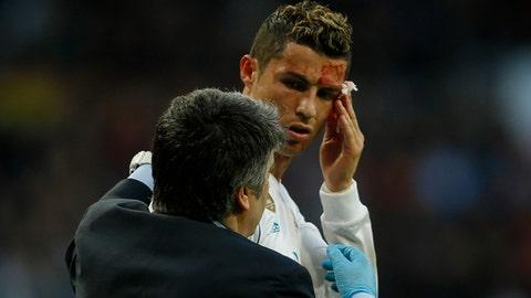 Real Madrid's Cristiano Ronaldo bleeds from his forehead during a Spanish La Liga soccer match between Real Madrid and Deportivo Coruna at the Santiago Bernabeu stadium in Madrid, Sunday, Jan. 21, 2018. (AP Photo/Francisco Seco)