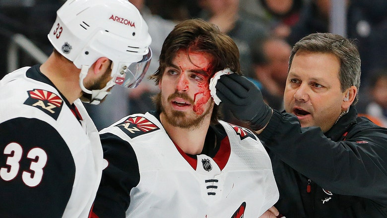 Garland nets game-winner after getting faced bloodied