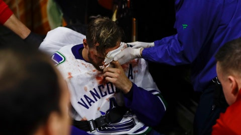 <p>               Vancouver Canucks' Alexander Edler is helped off the ice after an injury during the third period of an NHL hockey game against the Philadelphia Flyers, Monday, Feb. 4, 2019, in Philadelphia. Philadelphia won 2-1. (AP Photo/Matt Slocum)             </p>