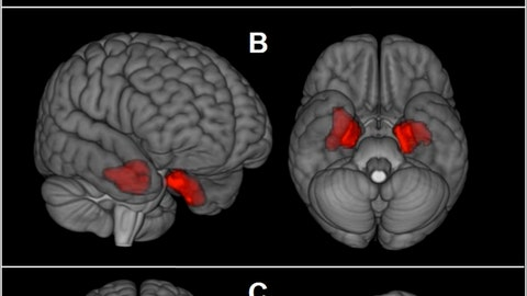 <p>               This image provided by The New England Journal of Medicine in April 2019 shows an illustration based on brain scans from former NFL players. As a group, they were found to have higher levels of an abnormal protein than a comparison group of healthy men, indicated by red patches. The protein is a hallmark of a degenerative brain disease that's been linked to repeated head blows. (The New England Journal of Medicine via AP)             </p>
