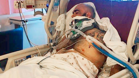 <p>               This undated photo provided by the Reyna family shows Rafael Reyna in his hospital bed at Los Angeles County-USC Medical Center in Los Angeles, after his beating outside Dodger Stadium. Bryan Stow, a San Francisco Giants fan who was left disabled in an attack outside Dodger Stadium that drew national attention eight years ago, said he's dismayed that Los Angeles police are again investigating an assault at the baseball stadium that left a man seriously injured. Authorities searched Monday, April 1, 2019, for a man who punched Rafael Reyna during an argument following Friday night's game. Christel Reyna says her husband Rafael sustained a skull fracture and is on life support.(Courtesy Reyna Family via AP)             </p>