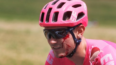 <p>               Tejay Van Garderen of the U.S. bleeds after crashing during the seventh stage of the Tour de France cycling race over 230 kilometers (142,9 miles) with start in Belfort and finish in Chalon sur Saone, France, Friday, July 12, 2019. (AP Photo/Thibault Camus)             </p>