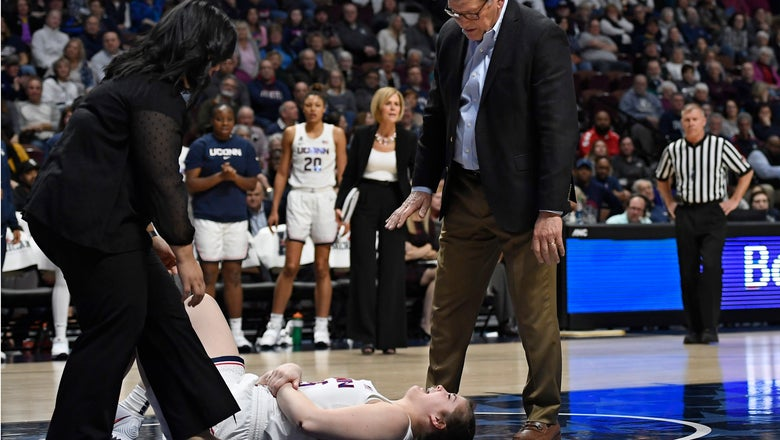 UConn forward Kyla Irwin's season over with fractured elbow