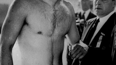 <p>               FILE - In this Dec. 6, 1956 file photo blood streams from the cut eye of Hungarian Ervin Zador injured during a fight with a member of the Soviet team in the closing stages of the Hungary vs. USSR water polo match in Melbourne, Australia. The Melbourne Olympics were already quite unique before they started. They were the first games held in the southern hemisphere, and ran from Nov. 22 to Dec. 8 to take in the Australian summer.  (AP Photo)             </p>
