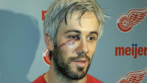 Miller can clearly see how lucky he is after skate carved face
