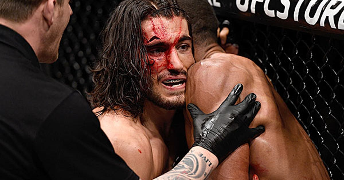 This Cut Over Theodorou S Eye Is Gnarly Fox Sports