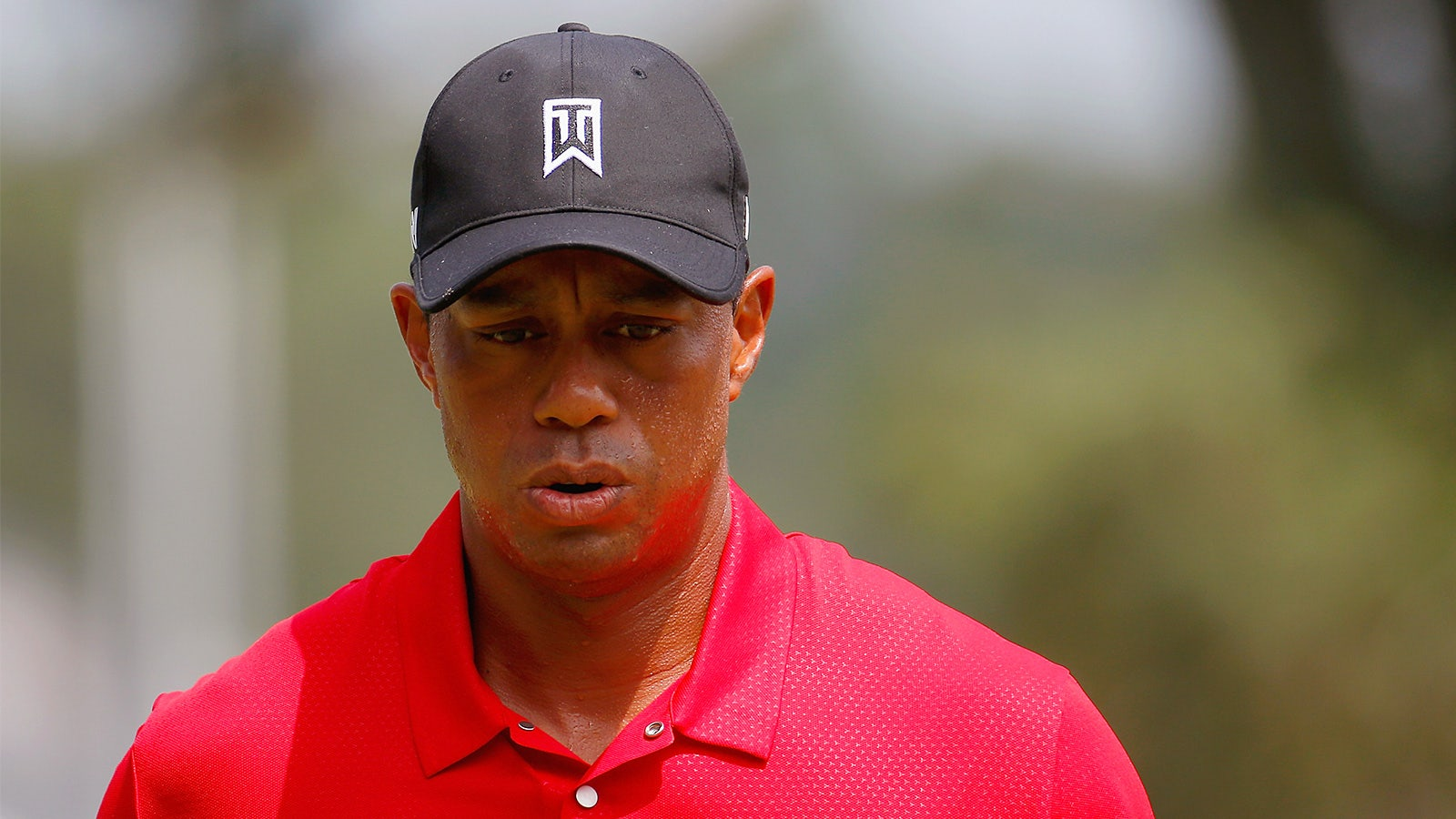 Tiger Woods pulls out of three events after back surgery