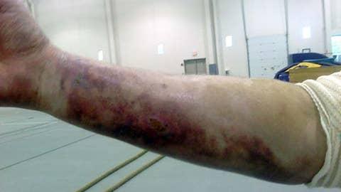 Tom West's arm
