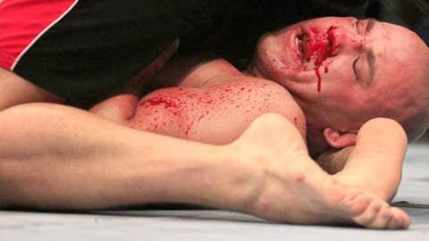 Kyle Kingsbury is shown fighting under Stephan Bonnar