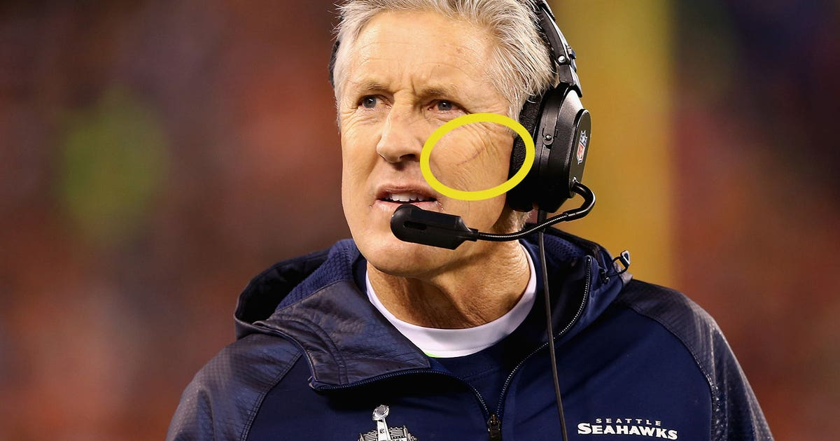 pete carroll gave awesome explanation  mysterious scratch   face fox sports