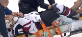 Coyotes player hospitalized after suffering awkward leg injury